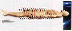 MDCT概念図
