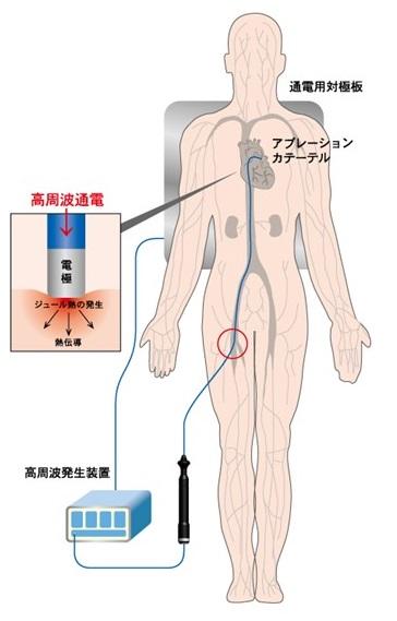 は アグ レーション と カテーテルアブレーション(RFCA)|倉敷中央病院心臓病センター循環器内科
